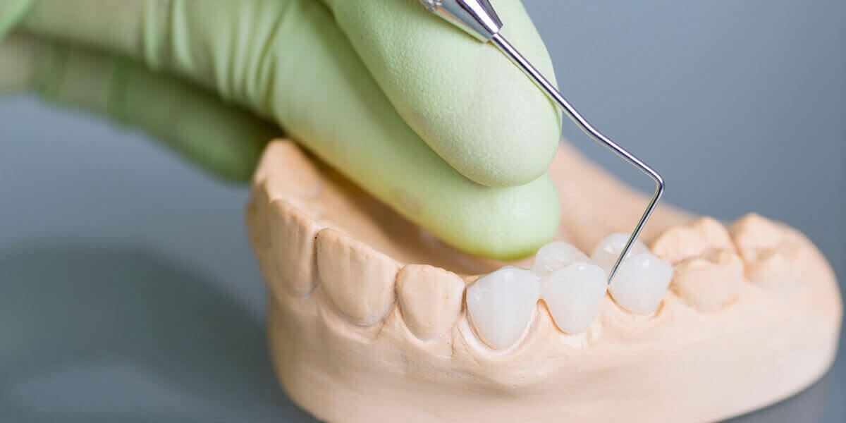 Dental Bridges in Bridgewater, NJ