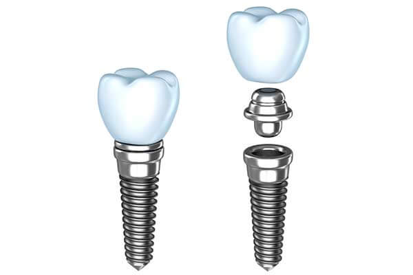 Single Dental Implants in Bridgewater, NJ