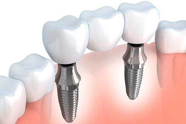 Implant Supported Bridges in Bridgewater, NJ